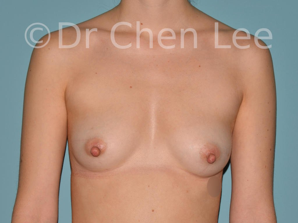 Nipple reduction before after front photo #01