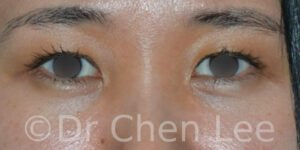 Asian blepharoplasty before after eyelid surgery front photo #01