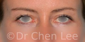 Blepharoplasty before after eyelid surgery front photo #02