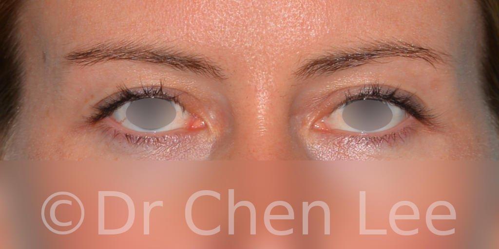 Blepharoplasty before after eyelid surgery front photo #02