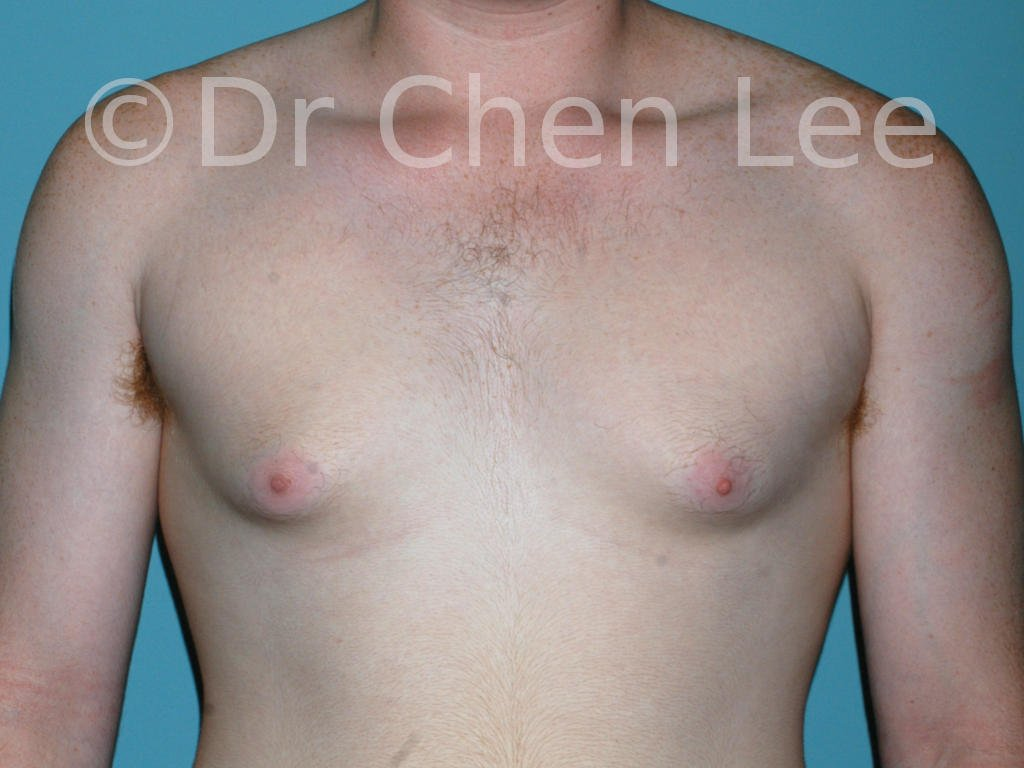 Gynecomastia surgery before after male breast reduction frontal photo #15