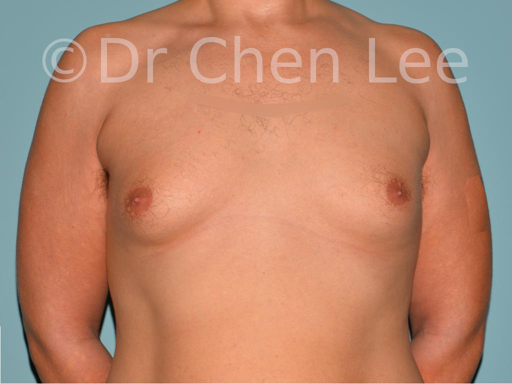 Gynecomastia surgery before after male breast reduction frontal photo #01