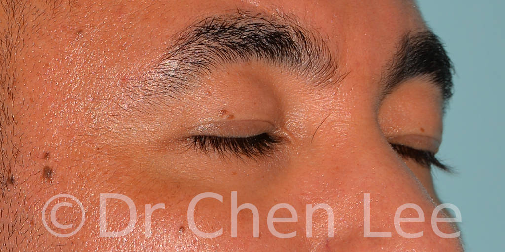 Asian blepharoplasty before after eyelid surgery right oblique closed photo #02