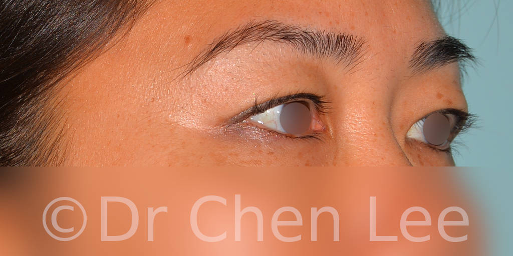 Asian blepharoplasty before after eyelid surgery right oblique photo #04
