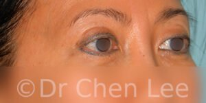 Asian blepharoplasty before after eyelid surgery right oblique photo #05