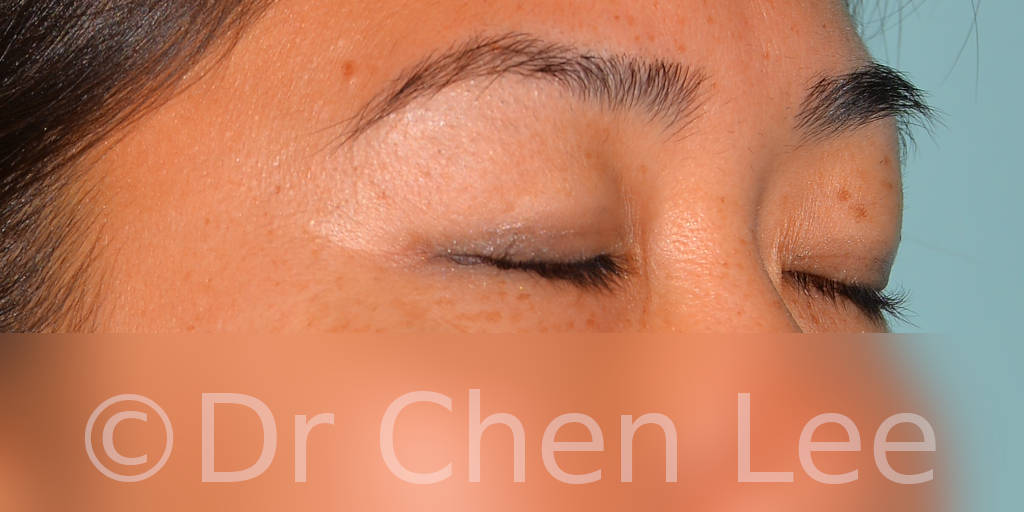 Asian blepharoplasty before after eyelid surgery right oblique closed photo #04