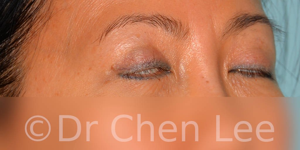 Asian blepharoplasty before after eyelid surgery right oblique closed photo #05