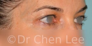 Blepharoplasty before after eyelid surgery right oblique photo #05