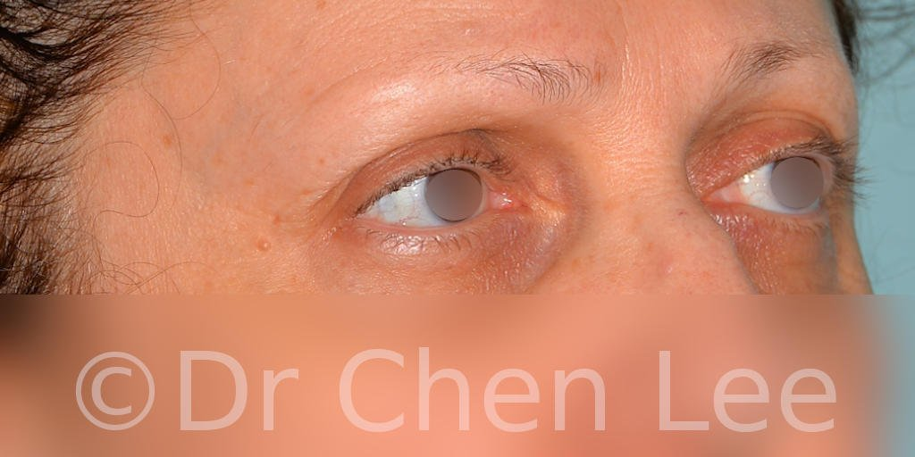 Blepharoplasty before after eyelid surgery right oblique photo #08