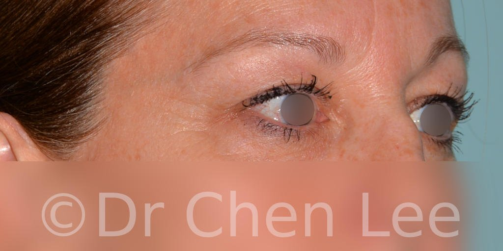 Blepharoplasty before after eyelid surgery right oblique photo #04