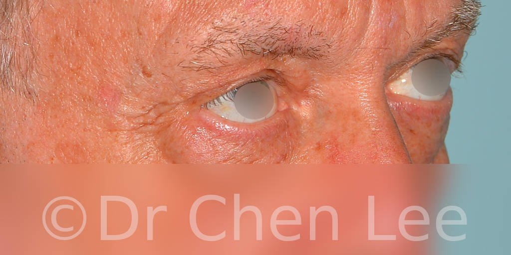 Blepharoplasty before after eyelid surgery right oblique photo #12