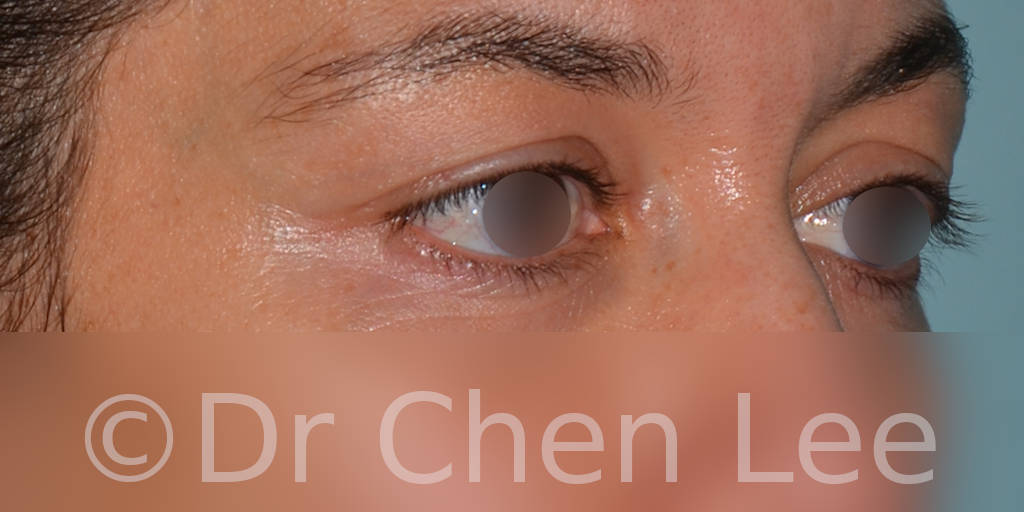 Blepharoplasty before after eyelid surgery right oblique photo #01