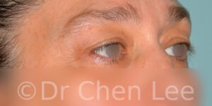Blepharoplasty before after eyelid surgery right oblique photo #11