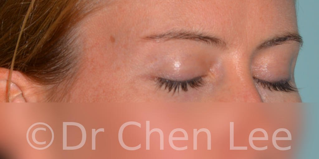Blepharoplasty before after eyelid surgery right oblique closed photo #02