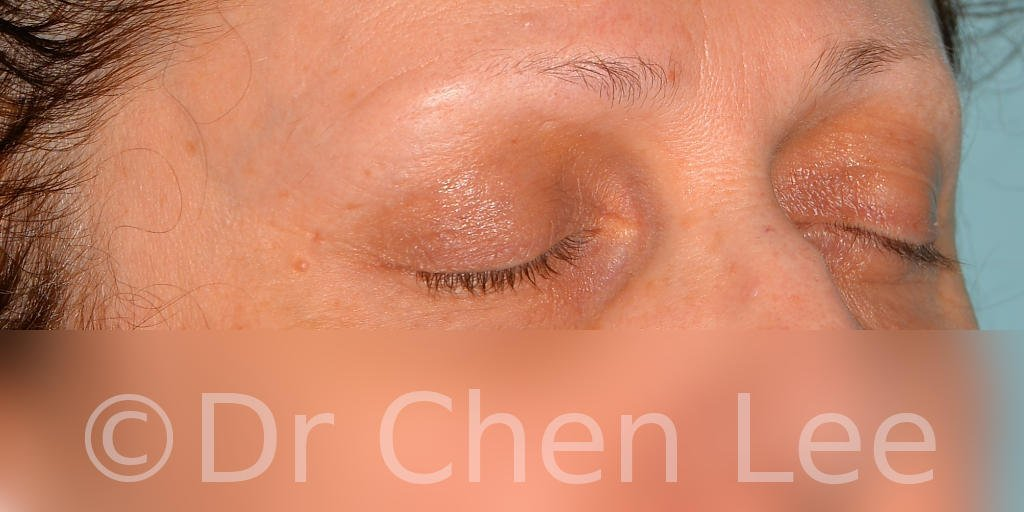 Blepharoplasty before after eyelid surgery right oblique closed photo #08