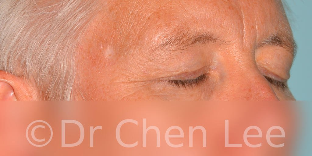 Blepharoplasty before after eyelid surgery right oblique closed photo #03