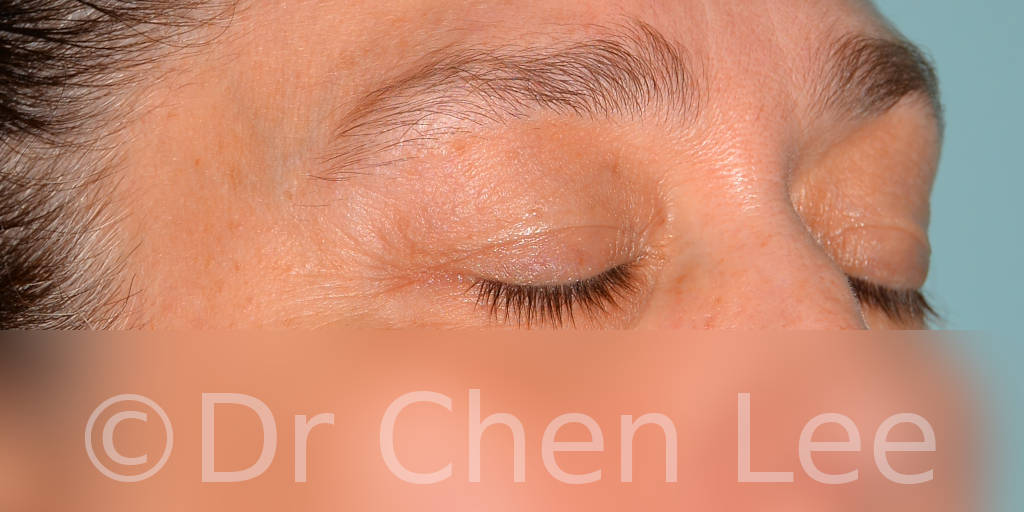 Blepharoplasty before after eyelid surgery right oblique closed photo #11