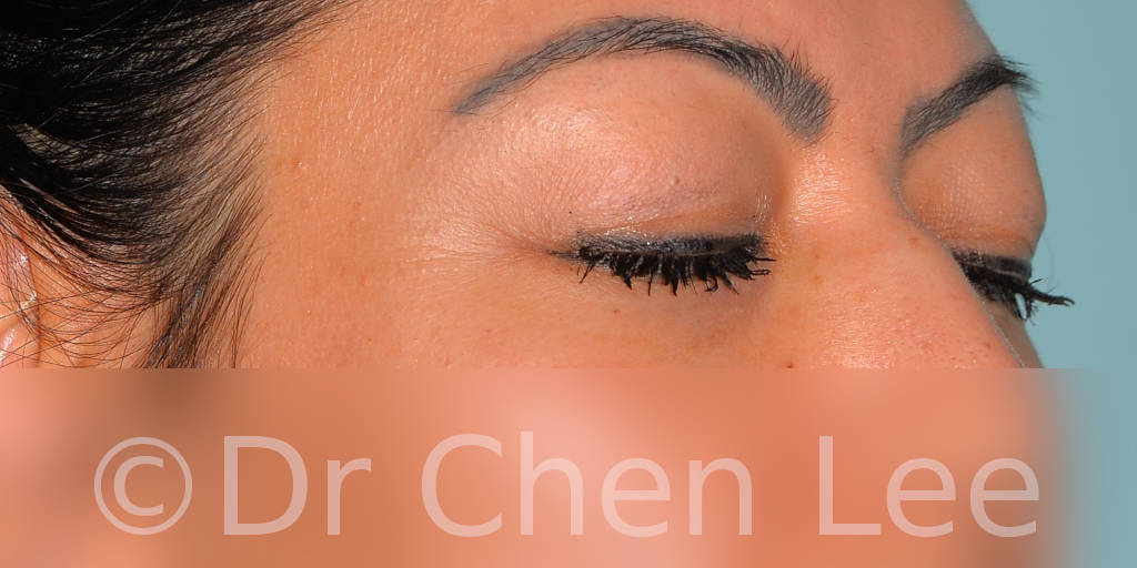 Blepharoplasty before after eyelid surgery right oblique closed photo #10