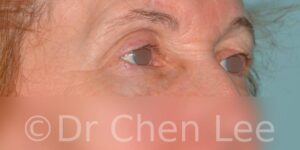 Blepharoplasty before after eyelid surgery right oblique photo #07