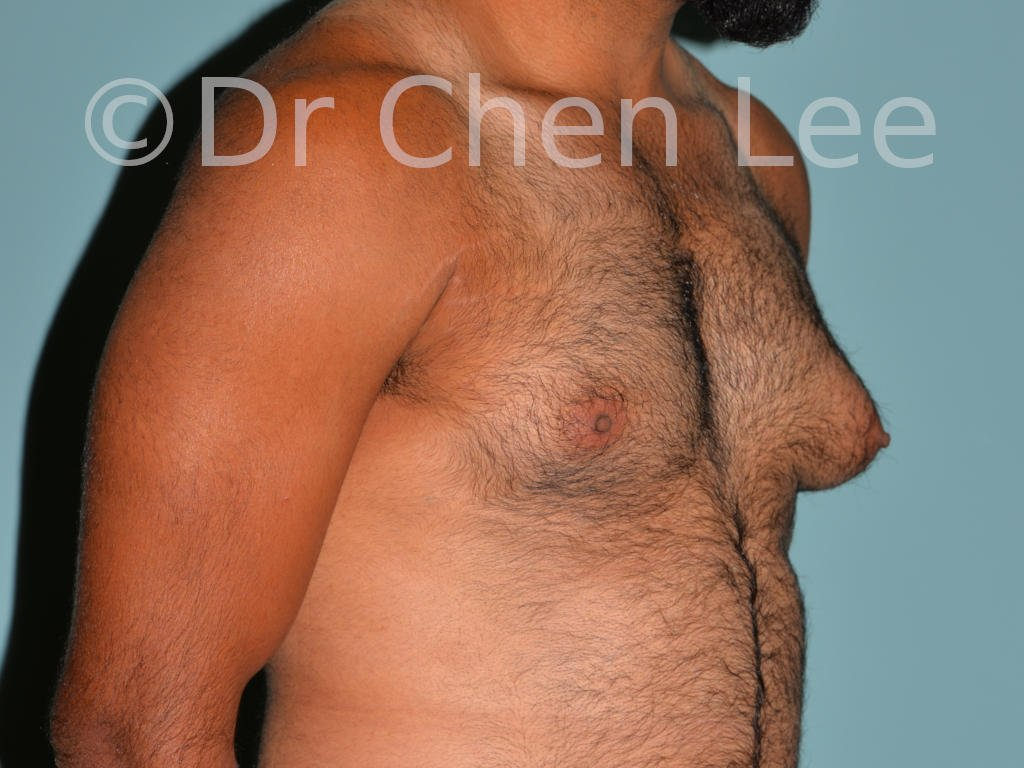 Gynecomastia surgery before after male breast reduction right oblique view photo #02