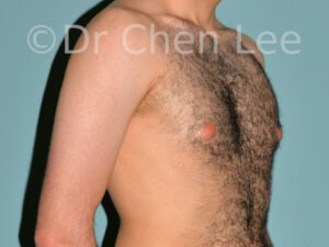 Gynecomastia surgery before after male breast reduction right oblique photo #10