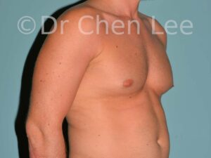 Gynecomastia surgery before after male breast reduction right oblique photo #07
