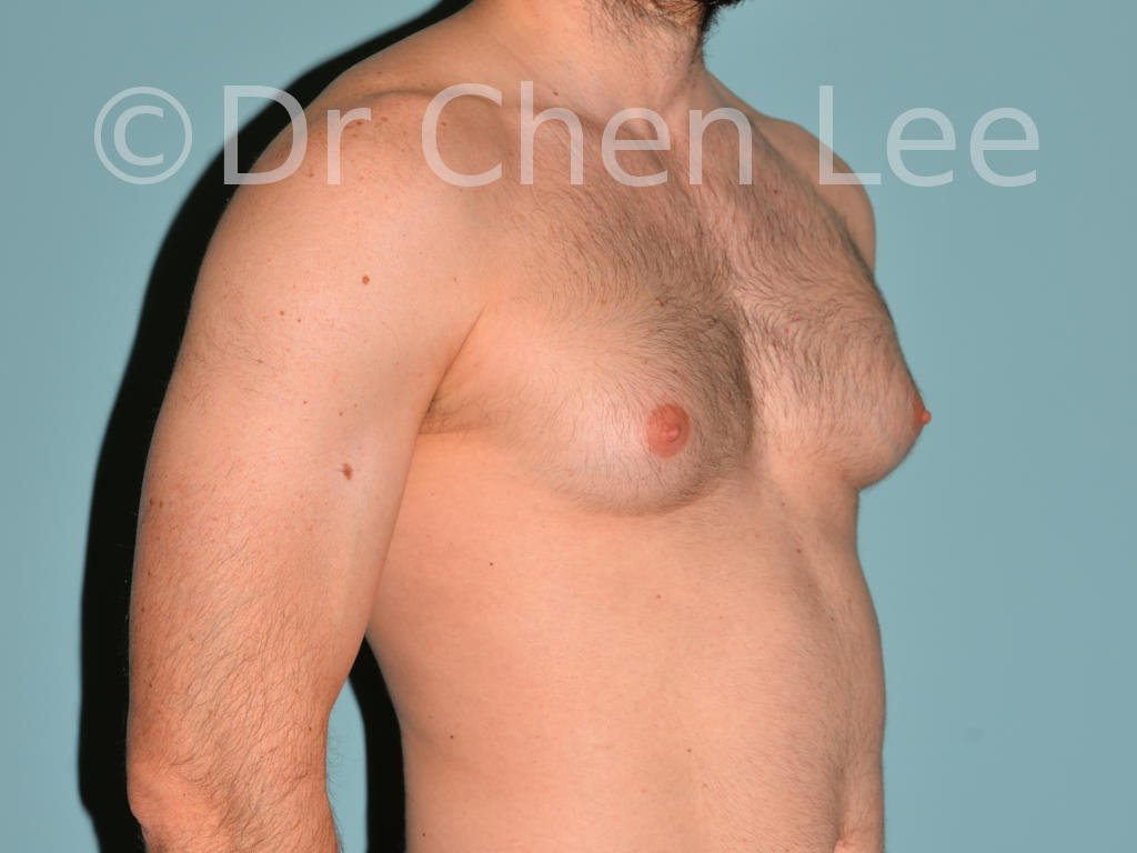 Gynecomastia surgery before after male breast reduction right oblique photo #04