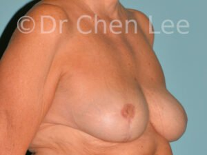Inverted nipple surgery before after right oblique photo #11