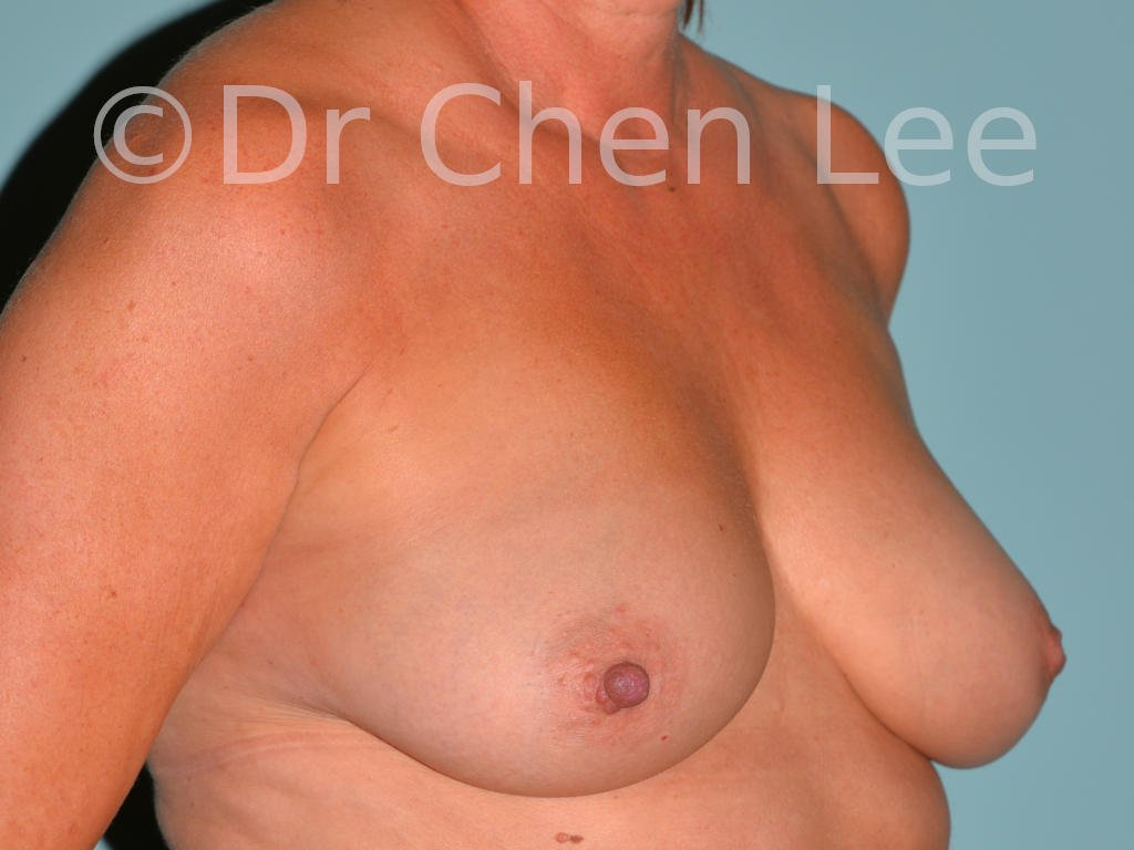 Inverted nipple surgery before after right oblique photo #10