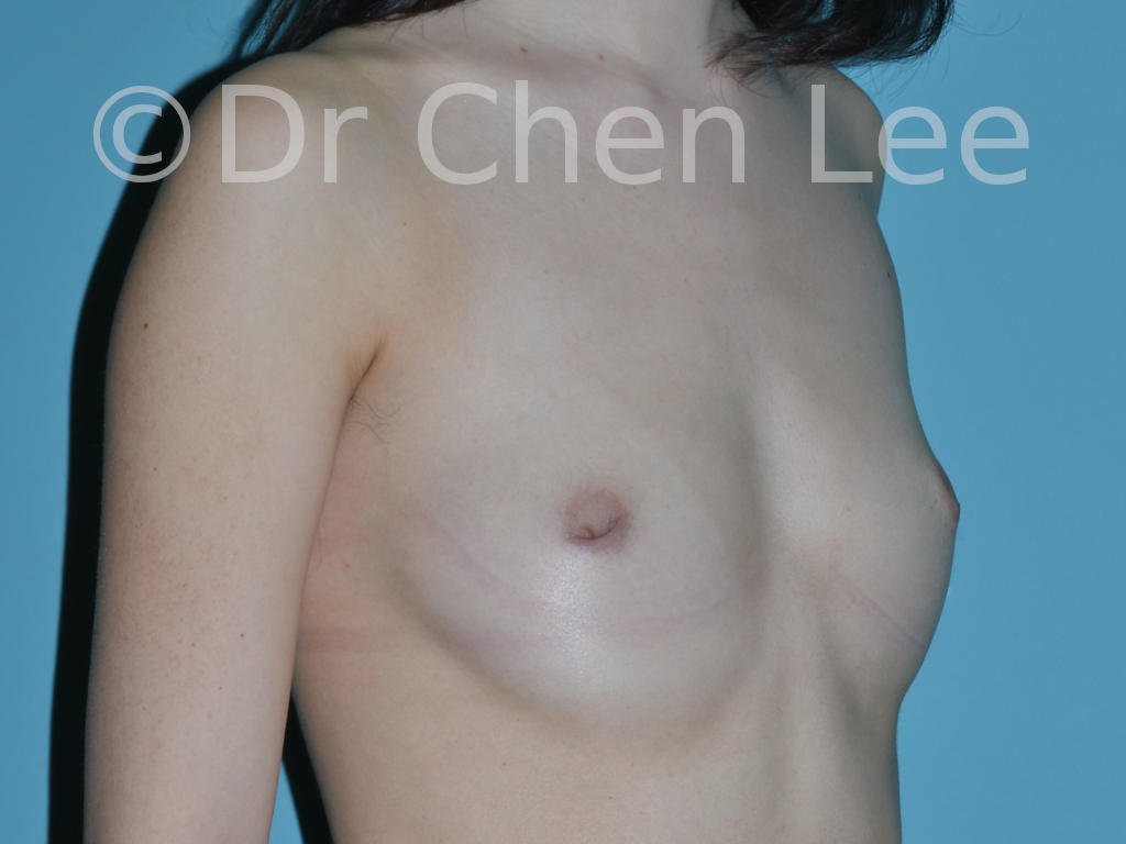 Inverted nipple surgery before after right oblique photo #04