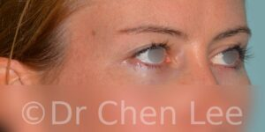 Blepharoplasty before after eyelid surgery right oblique photo #02