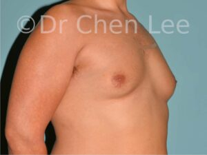 Gynecomastia surgery before after male breast reduction right oblique photos 01
