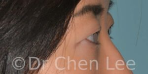 Asian blepharoplasty before after eyelid surgery right side photo #03