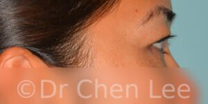 Asian blepharoplasty before after eyelid surgery right side photo #04