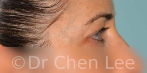 Blepharoplasty before after eyelid surgery right side photo #05