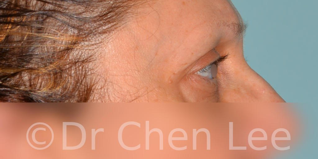 Blepharoplasty before after eyelid surgery right side photo #08