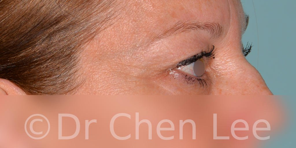 Blepharoplasty before after eyelid surgery right side photo #04