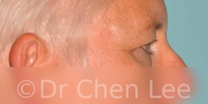 Blepharoplasty before after eyelid surgery right side photo #03