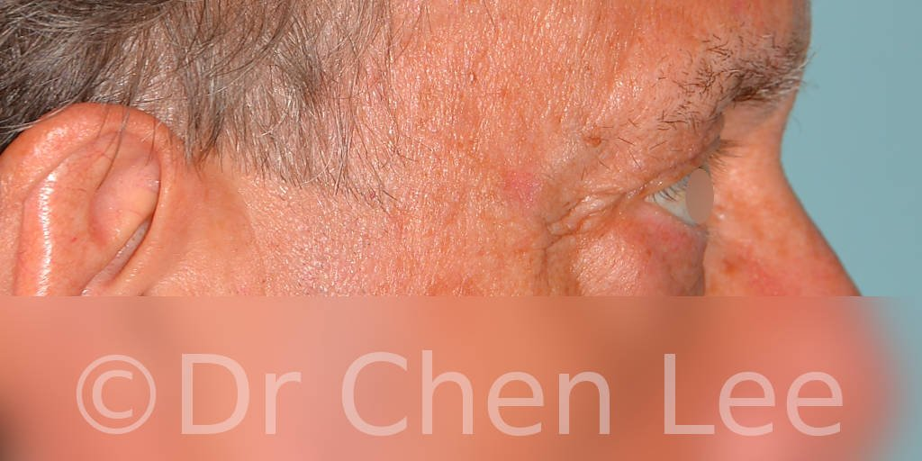 Blepharoplasty before after eyelid surgery right side photo #12