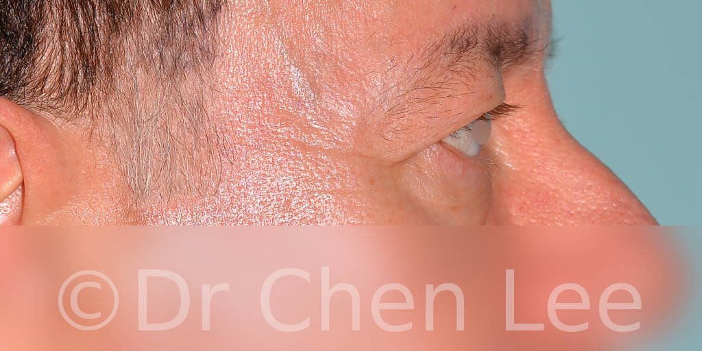 Blepharoplasty before after eyelid surgery right side photo #06
