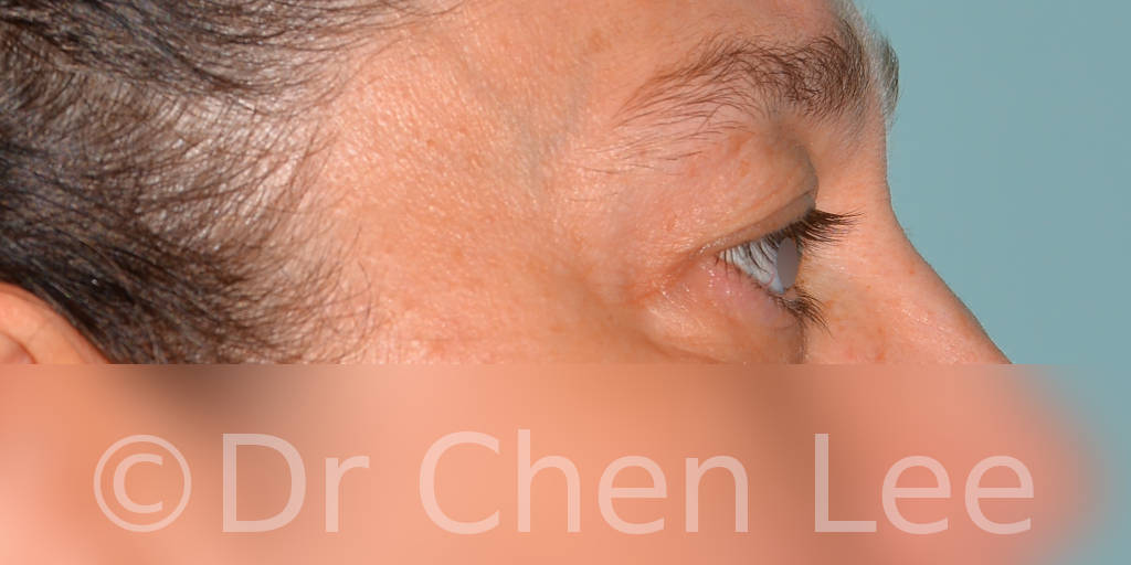 Blepharoplasty before after eyelid surgery right side photo #11