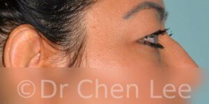 Blepharoplasty before after eyelid surgery right side photo #10