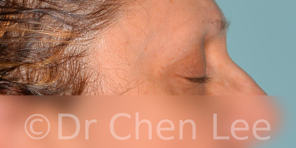Blepharoplasty before after eyelid surgery right side closed photo #08