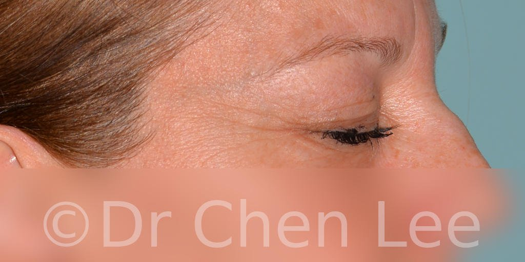 Blepharoplasty before after eyelid surgery right side closed photo #04