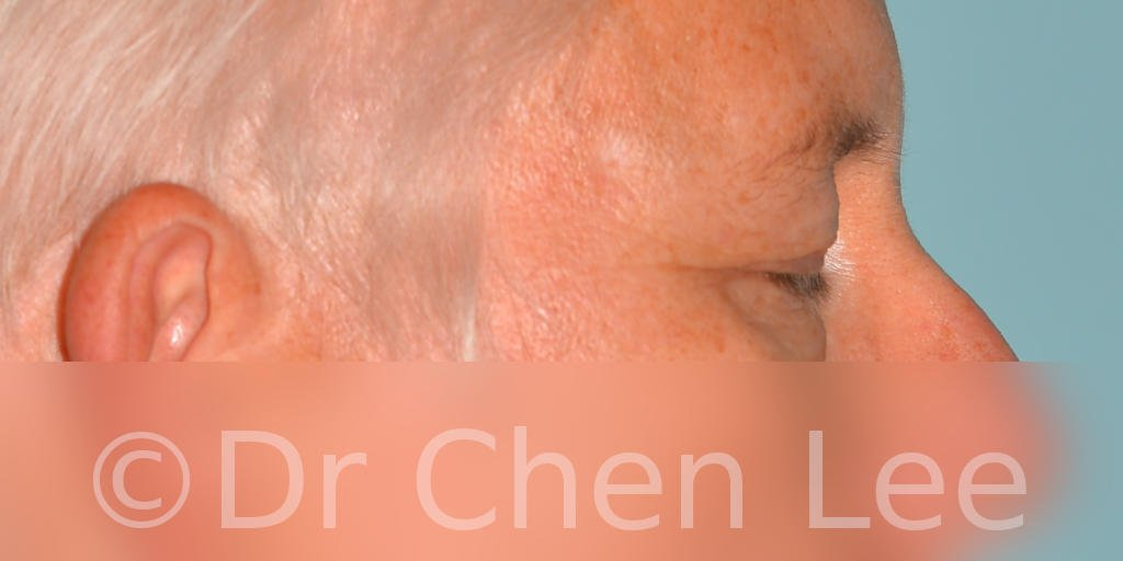 Blepharoplasty before after eyelid surgery right side closed photo #03