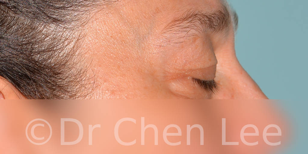 Blepharoplasty before after eyelid surgery right side closed photo #11