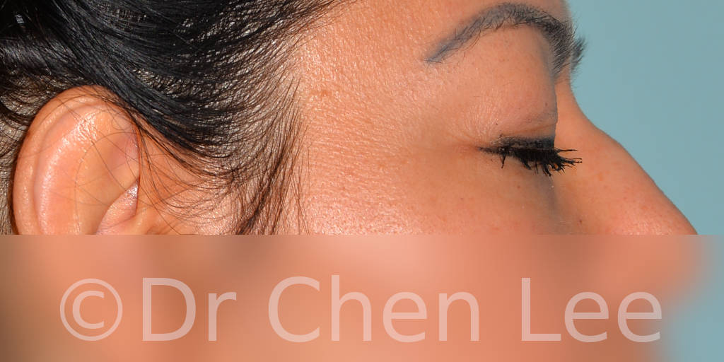 Blepharoplasty before after eyelid surgery right side closed photo #10