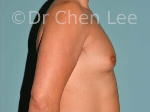 Gynecomastia surgery before after male breast reduction right side photos 01