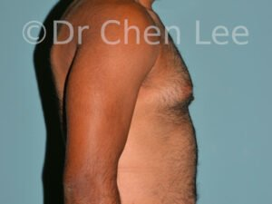 Gynecomastia surgery before after male breast reduction right side view photo #02