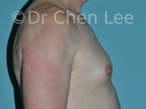 Gynecomastia surgery before after male breast reduction right side photo #12